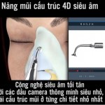 Nâng mũi cấu trúc 4D Siêu âm – Công nghệ nâng mũi chỉnh xương thế hệ mới nhất
