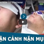 [0FF 30%] Nano Skin – Sạch mụn – Không tái phát
