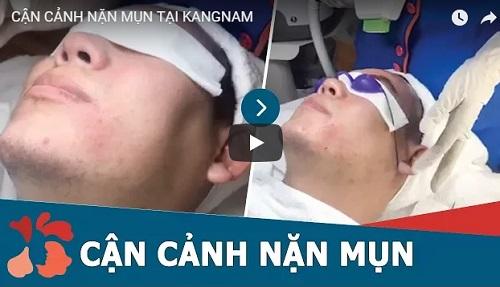 video điều trị mụn