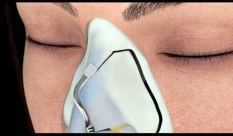 Nâng mũi cấu trúc 4D Siêu âm kangnam