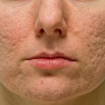 Trị sẹo rỗ hiệu quả chỉ sau 1 lần điều trị với công nghệ cấy da siêu vi điểm