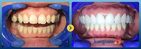 bọc răng sứ kangnam 1
