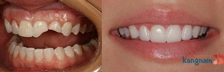 bọc răng sứ kangnam 2