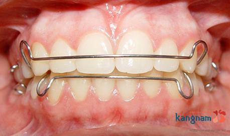 bảng giá niềng răng thẩm mỹ 1