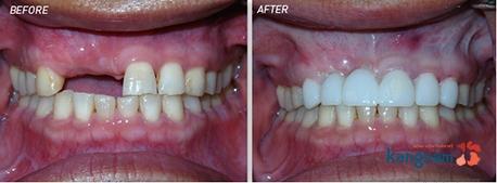 bọc răng sứ kangnam 3