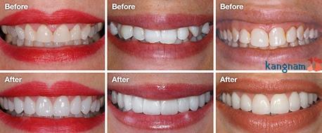 bọc răng sứ kangnam 7