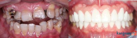 bọc răng sứ kangnam 8