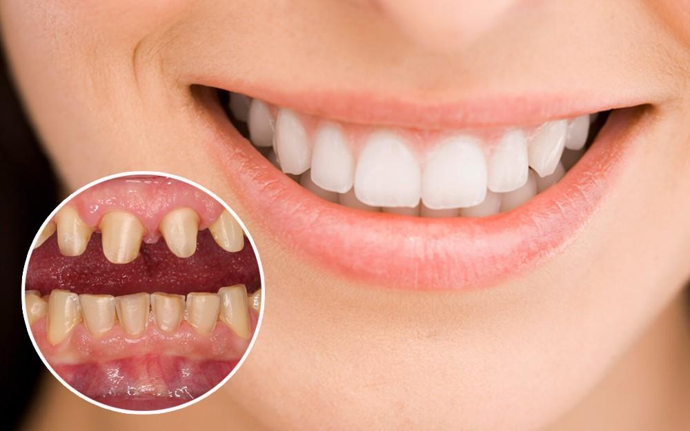 Chi phí bọc răng sứ tại Kangnam