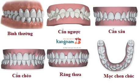 niềng răng khay trong kangnam 1