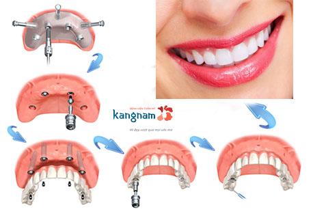 cấy ghép răng implant kangnam 1