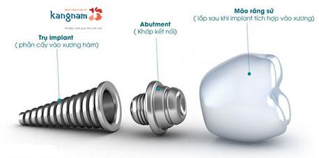 cấy ghép răng implant kangnam 2