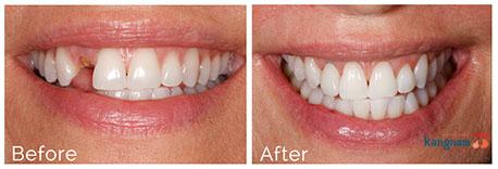 cấy ghép răng implant kangnam 3