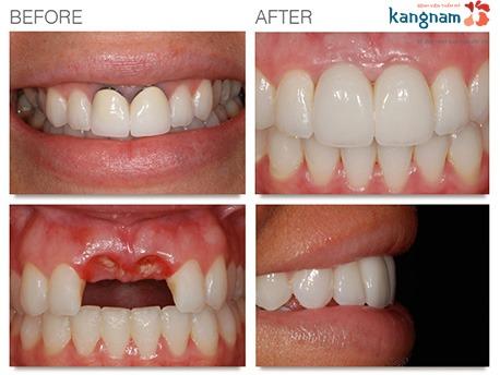 cấy ghép răng implant kangnam 4