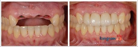 cấy ghép răng implant kangnam 5