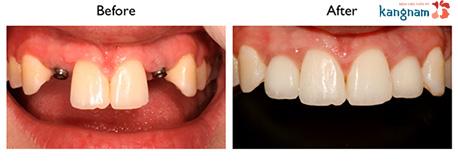 cấy ghép răng implant kangnam 6