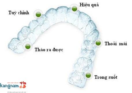 niềng răng khay trong kangnam 2