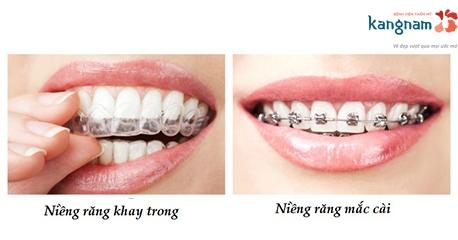 niềng răng khay trong kangnam 4