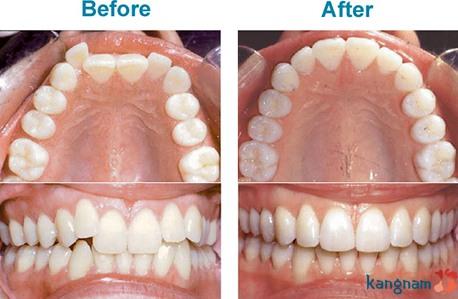 niềng răng khay trong kangnam 5