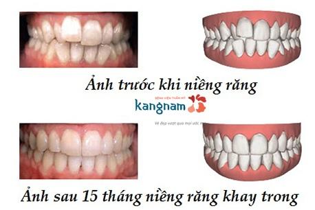 niềng răng khay trong kangnam 6