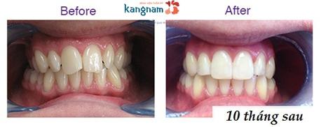 niềng răng khay trong kangnam 7