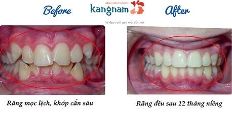 niềng răng khay trong kangnam 8