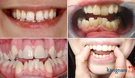niềng răng mắc cài kangnam 1