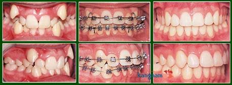 niềng răng mắc cài kangnam 9