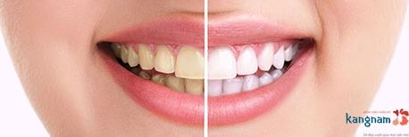 tẩy trắng răng rapid white 1