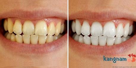 tẩy trắng răng rapid white 2