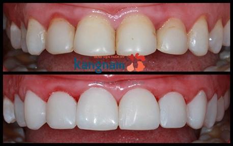 tẩy trắng răng rapid white 3