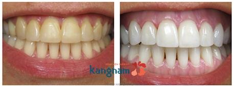 tẩy trắng răng rapid white 5