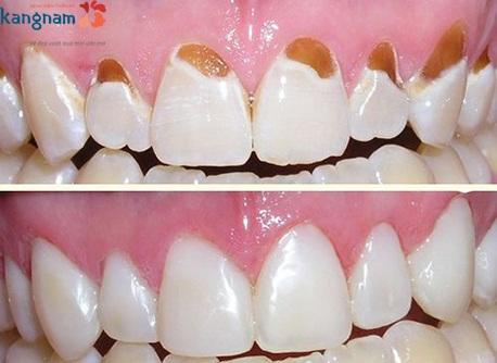 trám răng thẩm mỹ kangnam 1