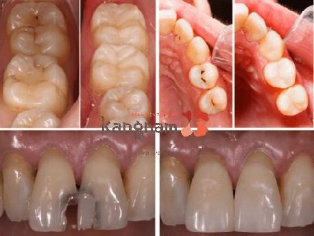 trám răng thẩm mỹ kangnam 2