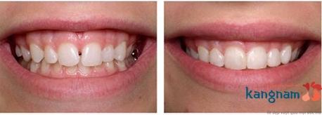 trám răng thẩm mỹ kangnam 5