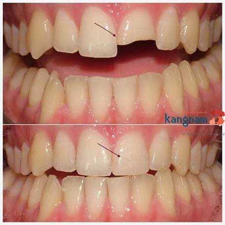 trám răng thẩm mỹ kangnam 7