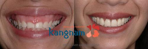 chữa cười hở lợi kangnam