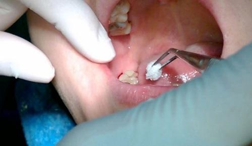chi phí nhổ răng
