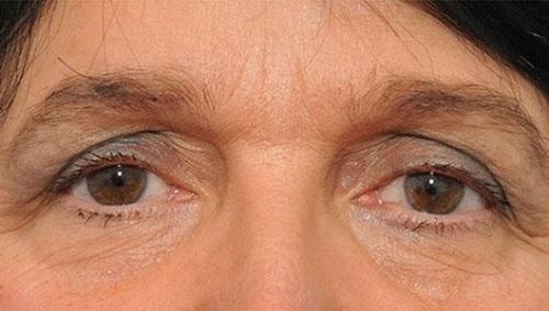 """""""Bắt bệnh"""" tình trạng mắt và cách xử lý hiệu quả cho đôi mắt đẹp"""