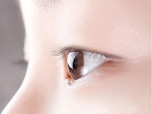 Tình trạng mắt một mí, không có chiều sâu