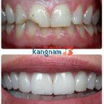 Hình ảnh khách hàng bọc răng sứ (*)