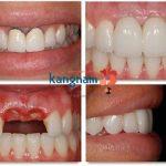 Hình ảnh khách hàng cấy ghép răng Implant 5S tại BVTM Kangnam (*)