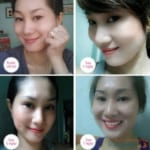 Hình ảnh khách hàng trước và sau khi cắt mí mắt tại BVTM Kangnam