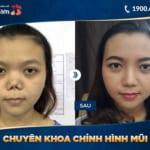 Chuyên khoa chỉnh hình mũi chuyên sâu Kangnam – Giải quyết mọi vấn đề mũi khó