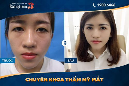 Bấm mí Kangnam