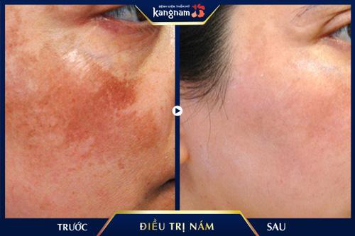 điều trị nám Picosure Kangnam