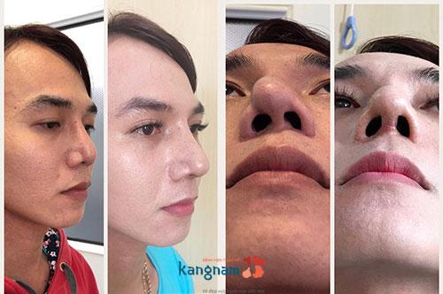 Giá sửa mũi hỏng ở Kangnam 3