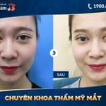 Sửa mũi ở Kangnam đẹp không? – Review từ diễn đàn, MXH, livestream thực tế