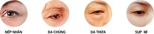 cắt mí mắt plasma tmv kangnam
