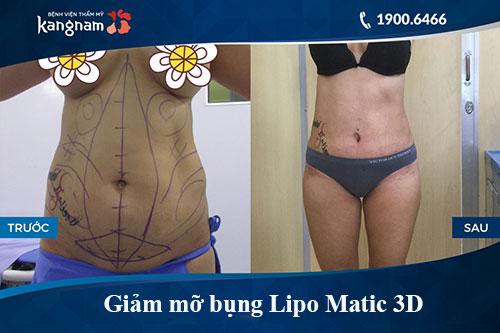 giảm béo lipo matic 3d có hiệu quả không 5