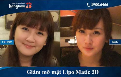 giảm béo lipo matic 3d có hiệu quả không 6